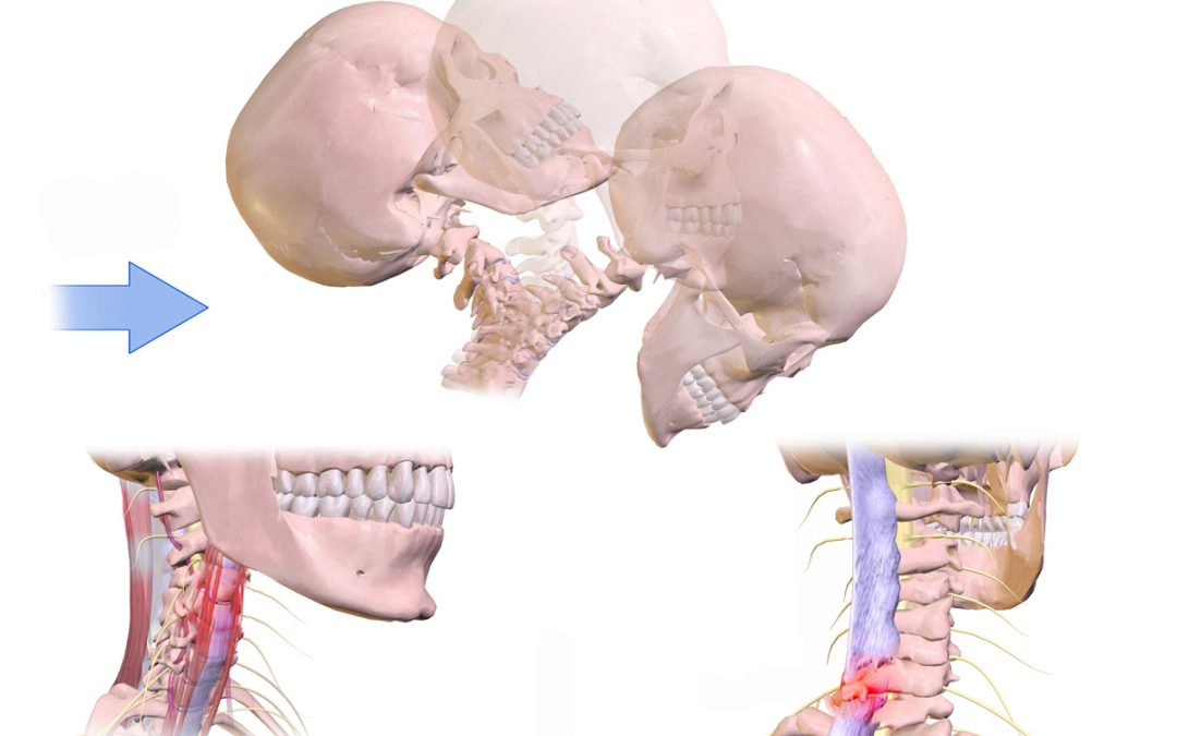 Why Chiropractic Care is Great for Treating Whiplashes
